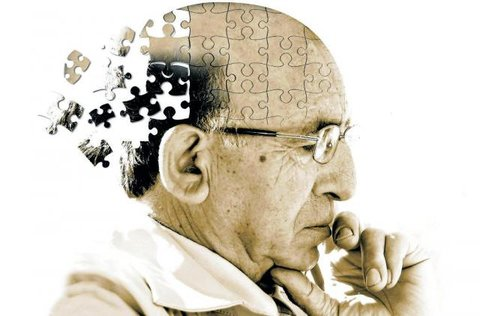 """""""Como desenvolver Alzheimer: Um guia prático"""""""